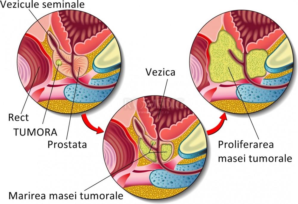 Cancaerul de prostata