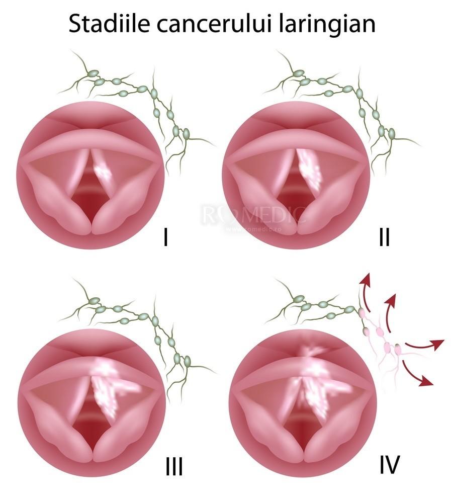 cum să- ți detoxici ficatul cu suplimente condilom în vagin